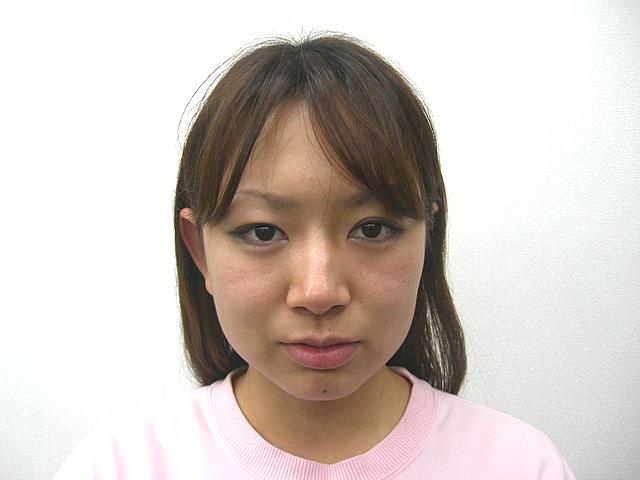 美容整体 (K・Yさん)アフター写真