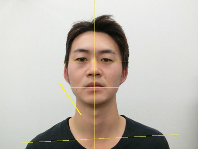 小顔・顔の歪み矯正 S.Kさん(34歳)アフター写真