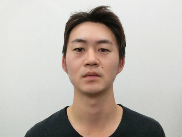 小顔・顔の歪み矯正 S.Kさん(34歳)