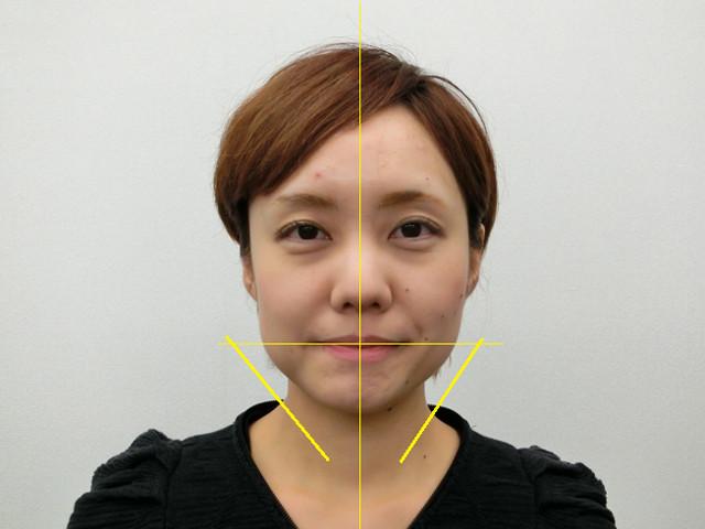 小顔・顔の歪み矯正 K.Cさん(29歳)アフター写真