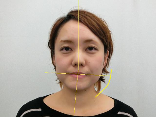 小顔・顔の歪み矯正 K.Cさん(29歳)ビフォア写真