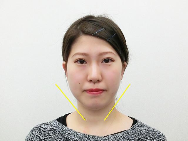 小顔・顔の歪み矯正(S.Aさん20歳)アフター写真