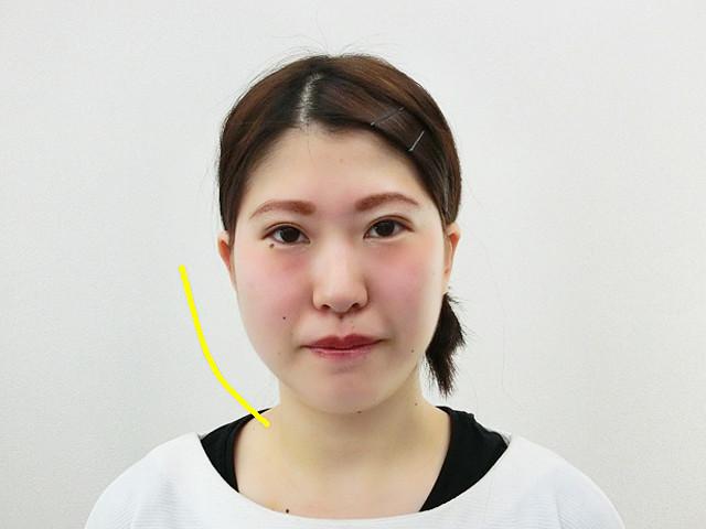 小顔・顔の歪み矯正(S.Aさん20歳)ビフォア写真