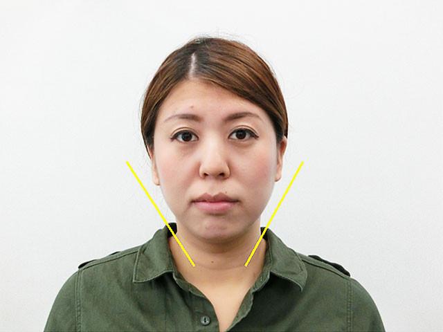 小顔・顔の歪み矯正 T.Mさん(28歳)アフター写真