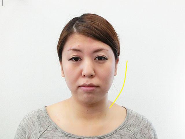 小顔・顔の歪み矯正 T.Mさん(28歳)ビフォア写真