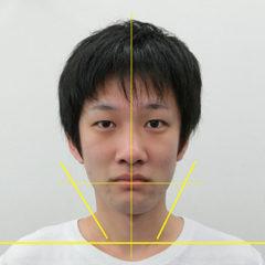 小顔・顔の歪み矯正 K.Kさん(28歳)