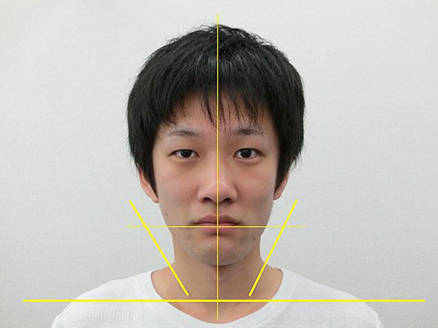 小顔・顔の歪み矯正 K.Kさん(28歳)アフター写真