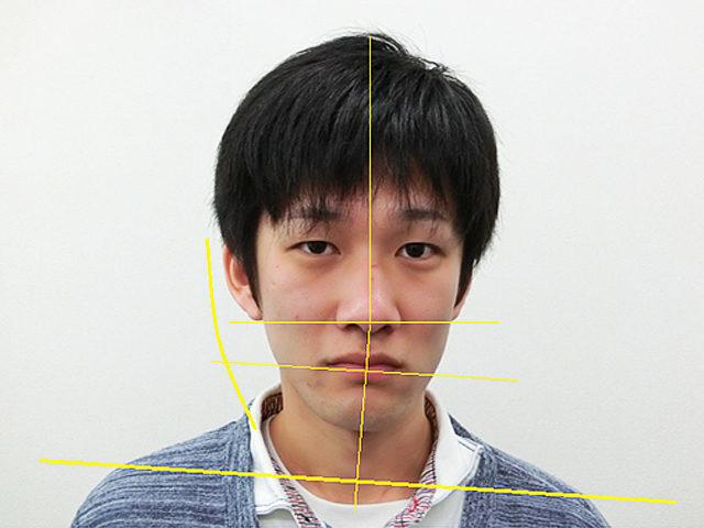 小顔・顔の歪み矯正 K.Kさん(28歳)ビフォア写真