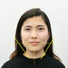 小顔・顔の歪み矯正 K.Cさん(20歳)