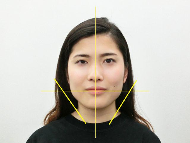 小顔・顔の歪み矯正 K.Cさん(20歳)アフター写真