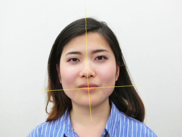 小顔・顔の歪み矯正 K.Cさん(20歳)ビフォア写真