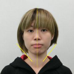 美容整体(全身根本改善)M.Tさん(23歳)