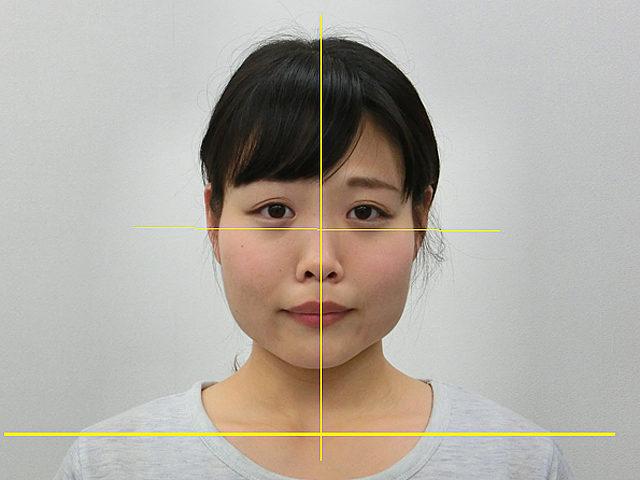 小顔・顔の歪み矯正(F.Rさん25歳)アフター写真