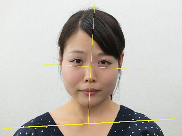 小顔・顔の歪み矯正(F.Rさん25歳)ビフォア写真