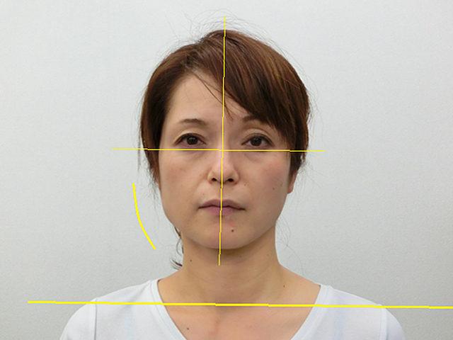 小顔・顔の歪み矯正 Y.Ⅿさん(47歳)アフター写真