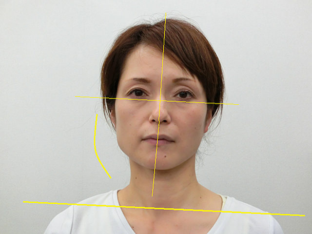 小顔・顔の歪み矯正 Y.Ⅿさん(47歳)ビフォア写真