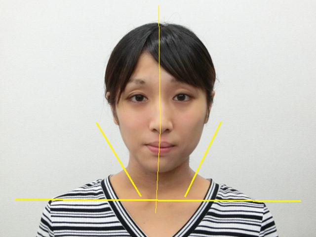 美容整体(全身根本改善)S.Mさん(25歳)アフター写真