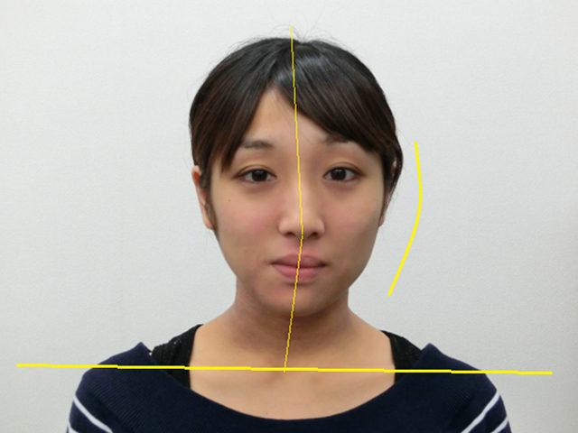美容整体(全身根本改善)S.Mさん(25歳)ビフォア写真
