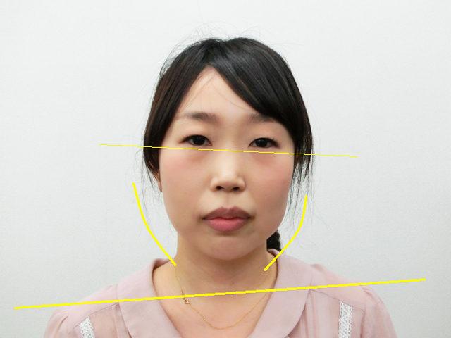 美容整体(全身根本改善)T.Mさん(37歳)ビフォア写真