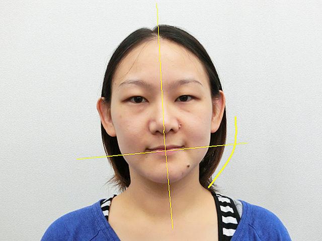 美容整体(全身根本改善)I.Tさん(33歳)ビフォア写真