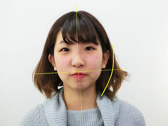 小顔・顔の歪み矯正S.Mさん(20歳)ビフォア写真