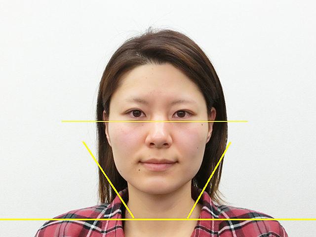 小顔・顔の歪み矯正 H.Yさん(31歳)アフター写真