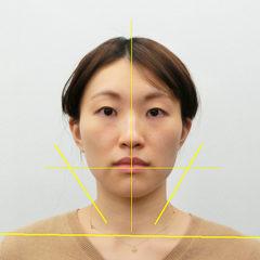 小顔・顔の歪み矯正 H.Aさん(27歳)