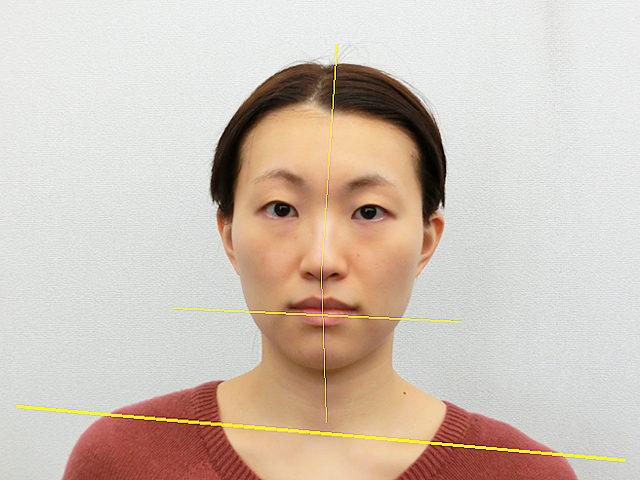 小顔・顔の歪み矯正 H.Aさん(27歳)ビフォア写真