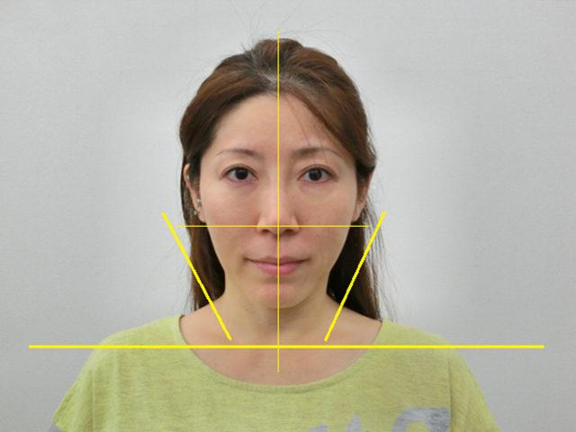 美容整体(全身根本改善)N.Kさん(43歳)アフター写真