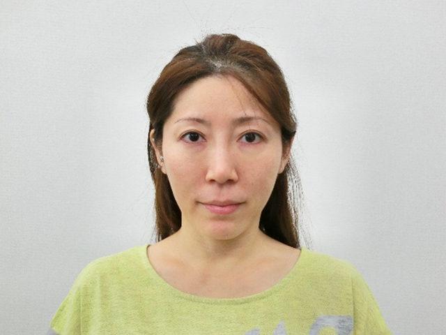 美容整体(全身根本改善)N.Kさん(43歳)
