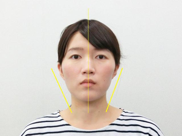 小顔・顔の歪み矯正 K.Aさん(24歳)アフター写真