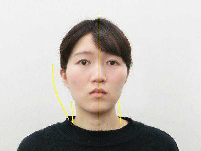 小顔・顔の歪み矯正 K.Aさん(24歳)ビフォア写真
