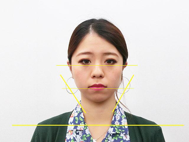 美容整体(全身根本改善)I.Aさん(25歳)アフター写真