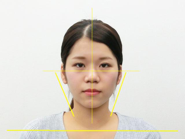美容整体(全身根本改善)S.Yさん(20歳)アフター写真