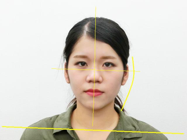 美容整体(全身根本改善)S.Yさん(20歳)ビフォア写真