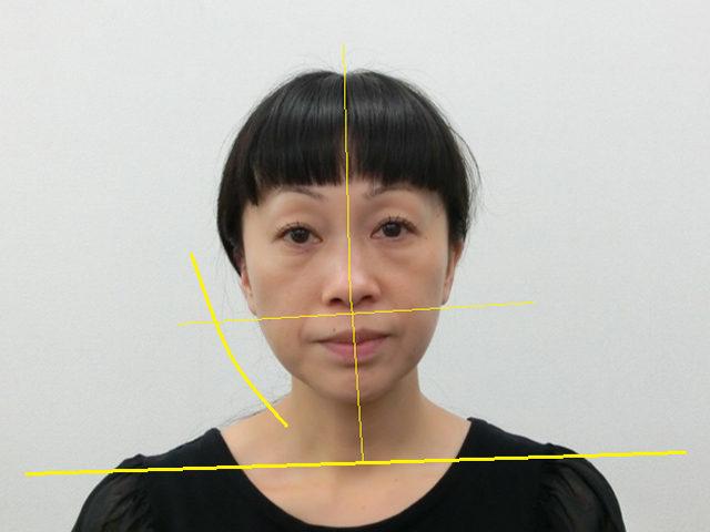 美容整体(全身根本改善)S.Nさん(44歳)ビフォア写真