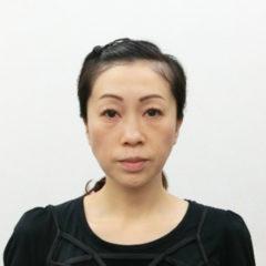 美容整体(全身根本改善)S.Nさん(44歳)