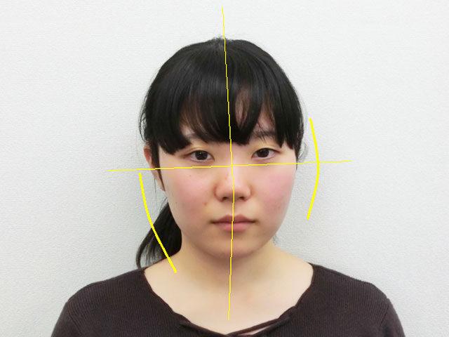 美容整体(全身根本改善)M.Mさん(20歳)ビフォア写真