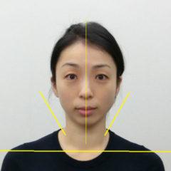 小顔・顔の歪み矯正 T.Tさん(41歳)