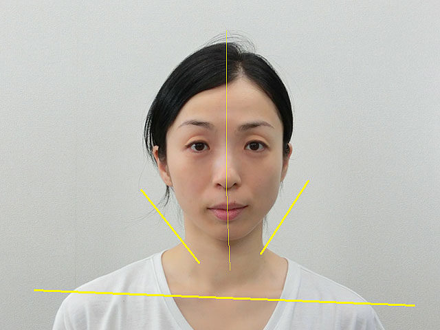 小顔・顔の歪み矯正 T.Tさん(41歳)ビフォア写真