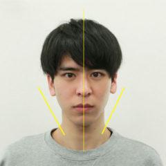 小顔・顔の歪み矯正 K.Rさん(22歳)