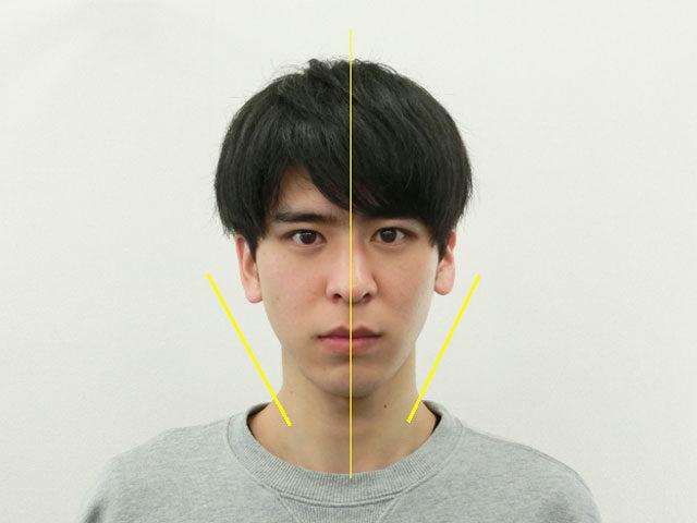 小顔・顔の歪み矯正 K.Rさん(22歳)アフター写真