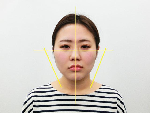美容整体(全身根本改善)S.Kさん(28歳)アフター写真