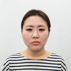 美容整体(全身根本改善)S.Kさん(28歳)