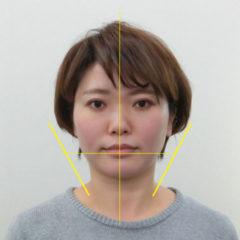 小顔・顔の歪み矯正 K.Yさん(35歳)