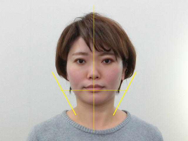 小顔・顔の歪み矯正 K.Yさん(35歳)アフター写真