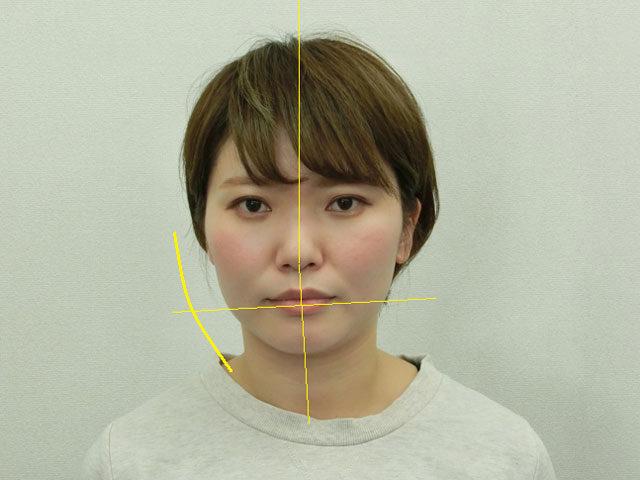 小顔・顔の歪み矯正 K.Yさん(35歳)ビフォア写真