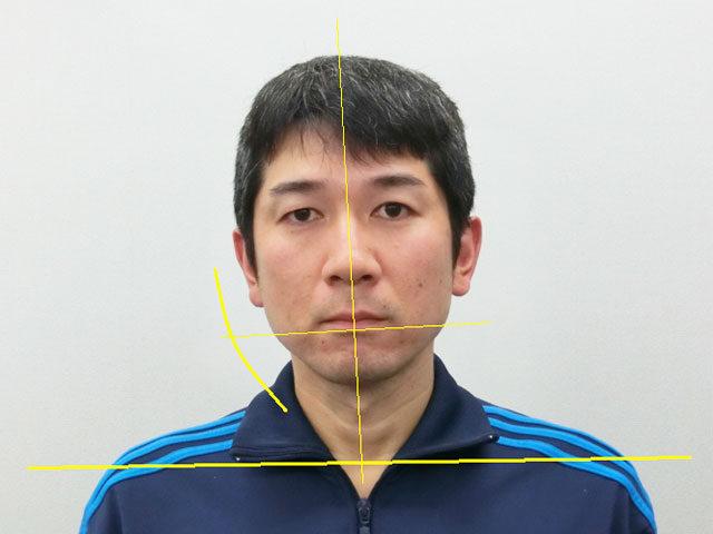 小顔・顔の歪み矯正 K.Tさん(36歳)ビフォア写真