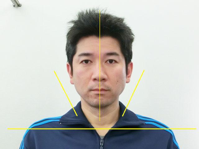 小顔・顔の歪み矯正 K.Tさん(36歳)アフター写真