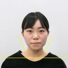 小顔・顔の歪み矯正 U.Aさん(20歳)